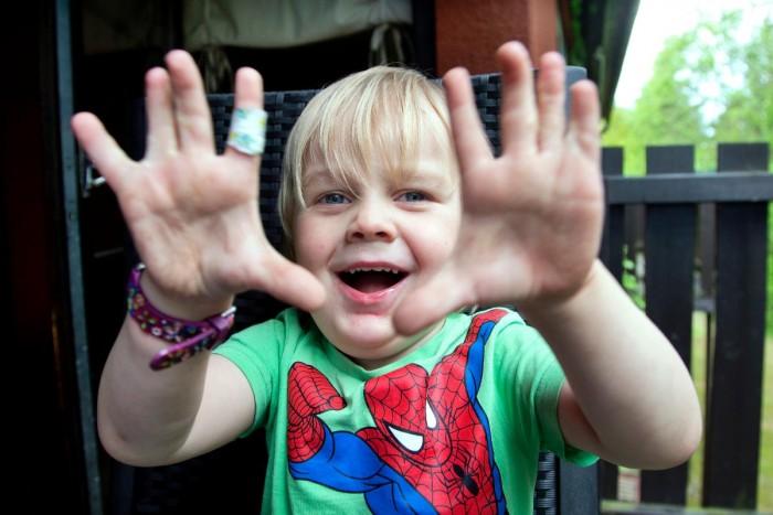 Syskonen föddes med hopväxta fingrar