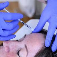Botoxbehandlingen minskar både antalet anfall och smärtintensiteten.