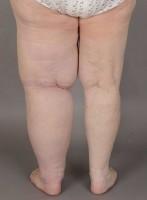 Före operationen är vänster ben kraftigt förstorat av fettvävnaden.
