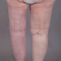 Efter operationen är vänster ben nästan smalare än det högra!
