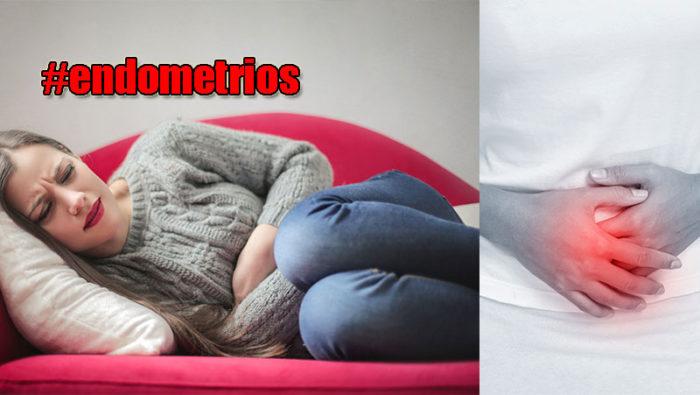endometrios-puff-facebook